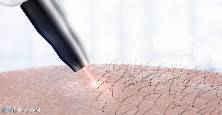 اضرار الليزر لازالة الشعر
