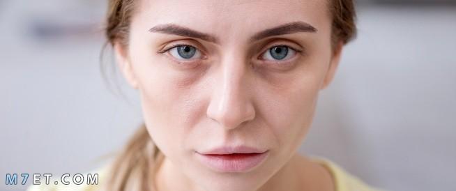 اسباب شحوب الوجه وبياض الشفاه