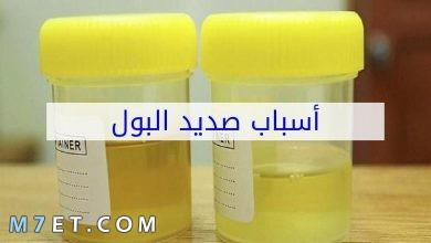 Photo of اسباب الصديد في البول وعلامات الشفاء من صديد البول