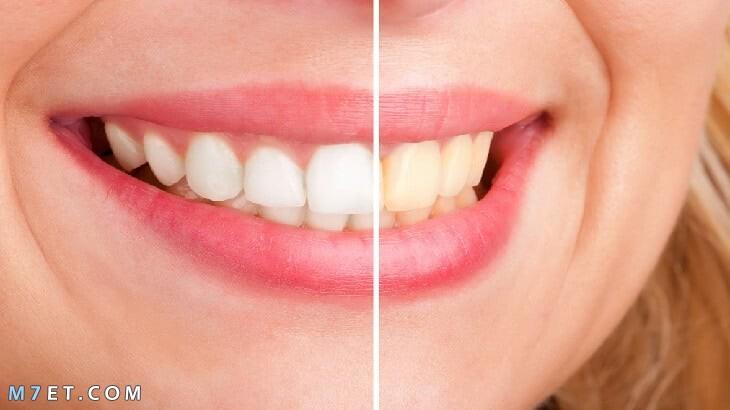 فوائد الكركم للاسنان