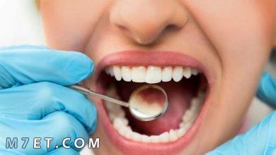 Photo of كيف تتخلص من تسوس الأسنان في خمس خطوات