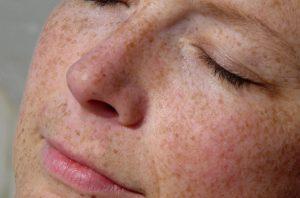 اسباب تصبغات الجلد: العلاجات الطبية البديلة وافضل 5 طرق للوقاية