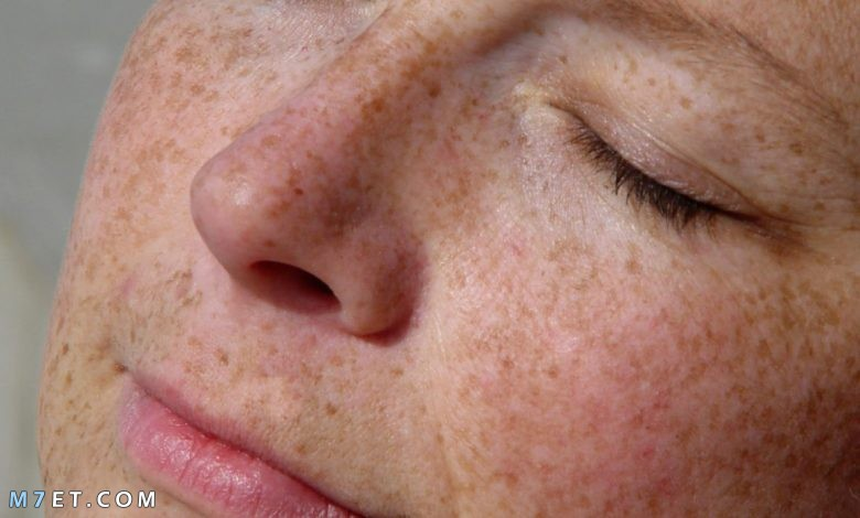 اسباب تصبغات الجلد