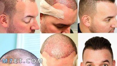 Photo of مراحل نمو الشعر بعد الزراعة | فيتامينات هامة بعد زراعة الشعر