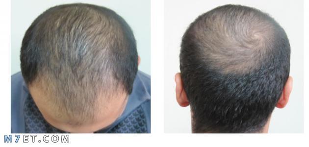 مراحل نمو الشعر بعد الزراعة