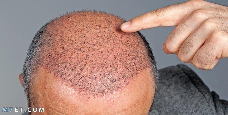 الشعر بعد الزراعة
