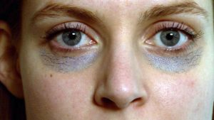 أفضل حل للهالات السوداء تحت العين في 30 دقيقة