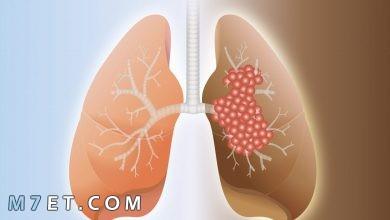 Photo of اسباب تليف الرئة وعلاقتها بفيروس كورونا | أبرز 5 أعشاب لعلاج تليف الرئة في المنزل