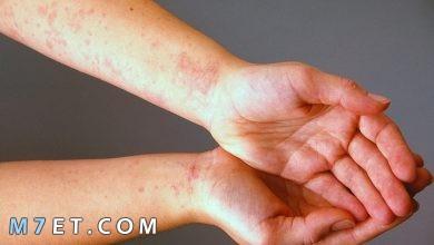 Photo of اسباب الحكة في الجسم والاحمرار الشديد وطرق العلاج خلال 3 اشهر
