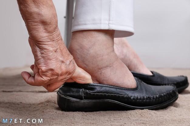 أسباب تورم اليدين والقدمين