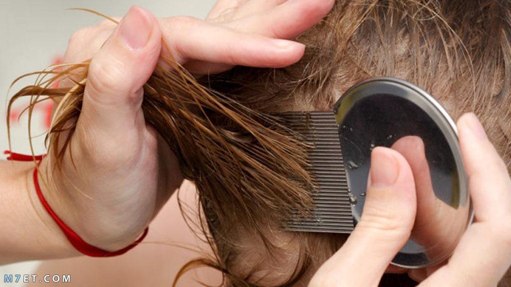 علاج تقصف الشعر عند الاطفال