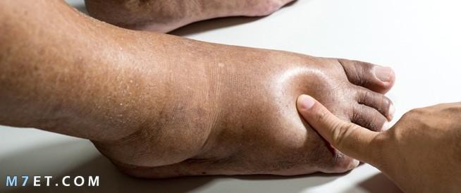 أعراض احتباس السوائل في الجسم وزيادة الوزن | علاج مجرب