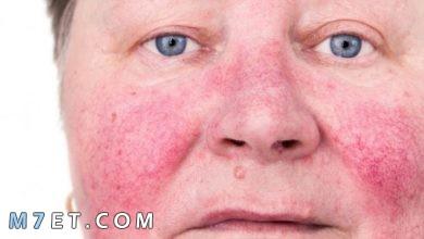 Photo of أشهر اسباب الذئبة الحمراء المنتشرة | الأعراض | التحليل والعلاج