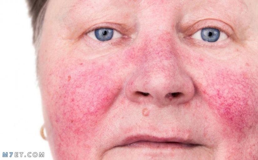 أشهر اسباب الذئبة الحمراء المنتشرة الأعراض التحليل والعلاج