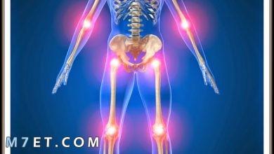 Photo of أسباب آلام العظام والعضلات | 8 أسباب معروفة لآلام العظام