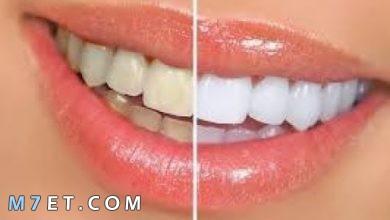 Photo of ازالة تسوس الاسنان | 7 خطوات لازالة التسوس طبيا