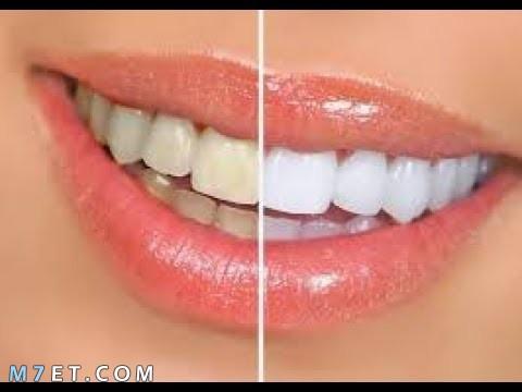 إزالة تسوس الاسنان