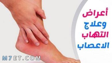 Photo of التهاب الأعصاب الطرفية | 9 أعراض تنذر بإصابتك بالمرض