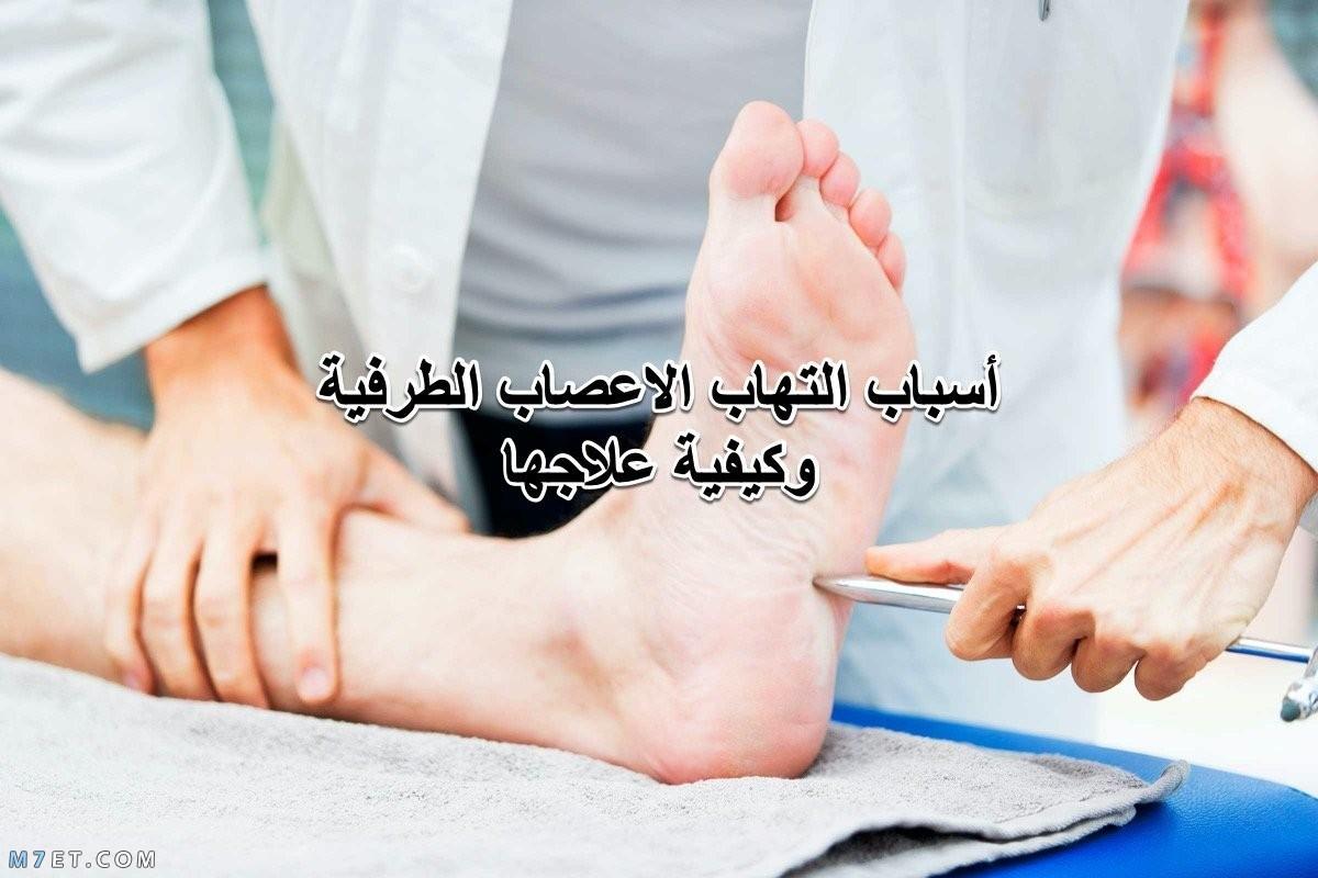 التهاب الأعصاب الطرفية