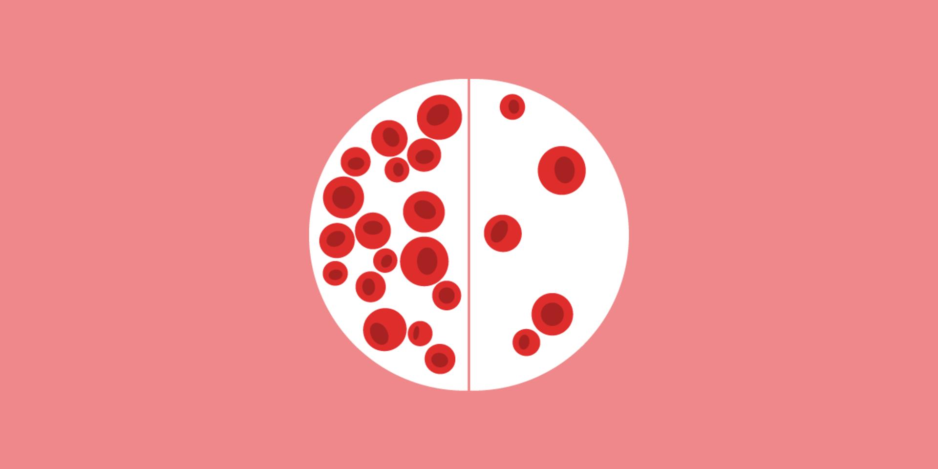 اسباب فقر الدم لدى النساء