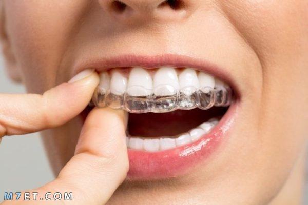 فوائد تقويم الاسنان