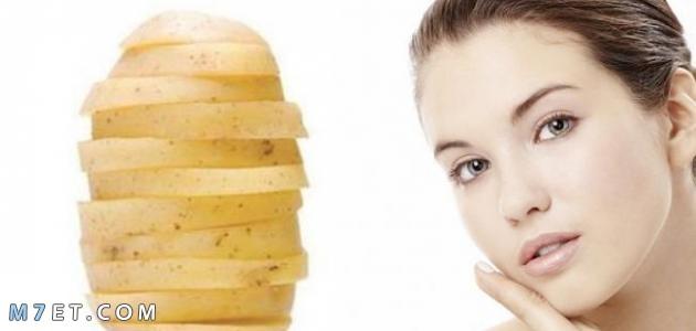 أضرار البطاطس للشعر
