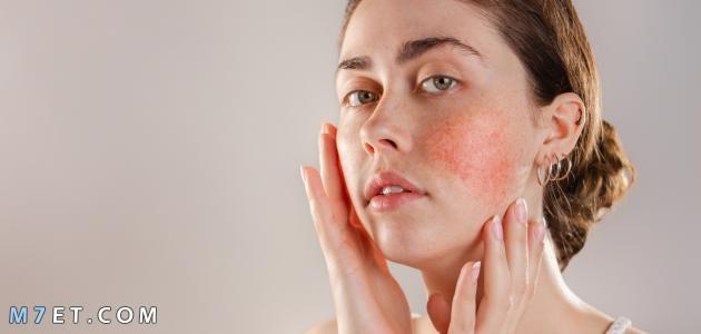 حساسية الوجه