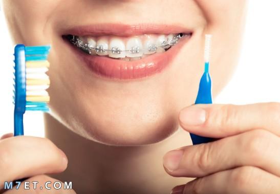 ما اضرار تقويم الاسنان