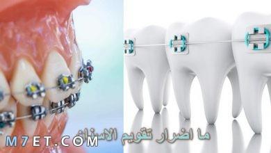 Photo of ما اضرار تقويم الاسنان
