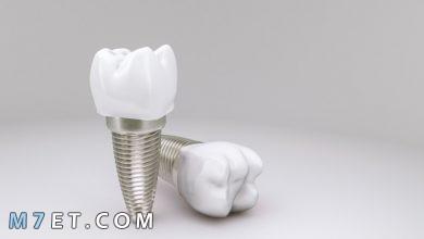 Photo of مراحل زراعة الأسنان هل هي بسيطة أم غير ذلك؟