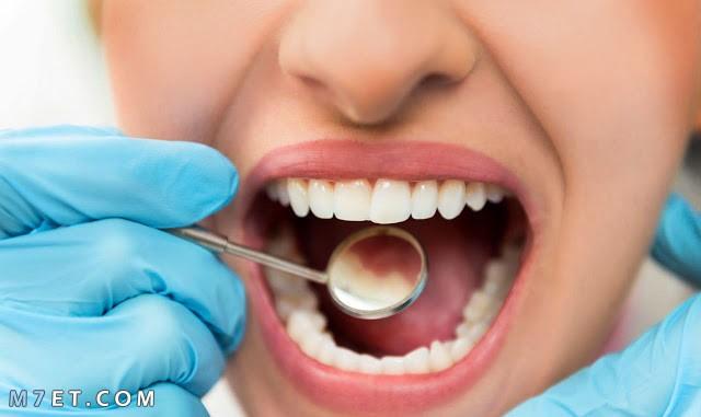 ازالة تسوس الاسنان