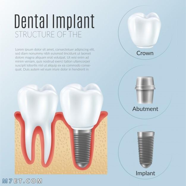 مراحل زراعة الأسنان