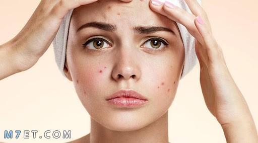 علاج الحبوب تحت الجلد في الوجه