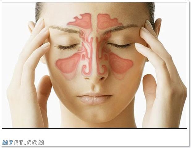 أعراض إلتهاب الجيوب الأنفية