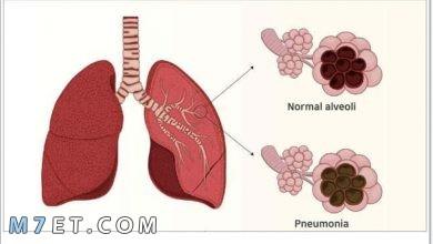 Photo of أعراض الالتهاب الرئوي عند الاطفال