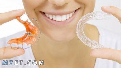 Photo of أنواع تقويم الأسنان