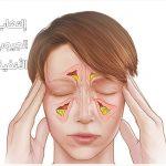 أعراض وأضرار إلتهاب الجيوب الأنفية وعلاجها