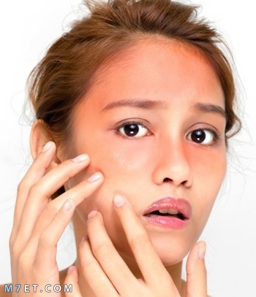 احمرار الوجه بعد الماسك