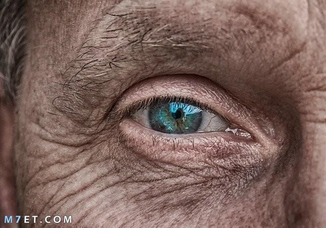 علاج تجاعيد تحت العين