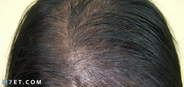 اسباب ضعف الشعر