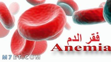 Photo of تعريف فقر الدم| الاعراض والاسباب وطرق العلاج بالاطعمة