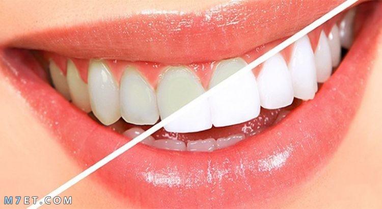 فوائد الخل للأسنان