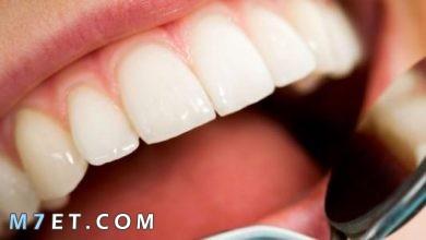 Photo of مختلف طرق ازالة تسوس الاسنان والعناية بها