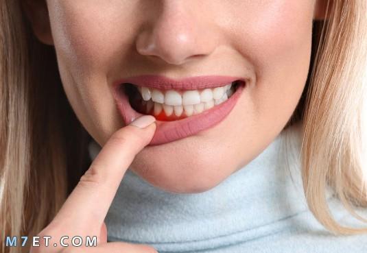 ما اسباب التهاب اللثة