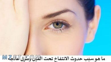 Photo of علاج انتفاخ تحت العين طبيعيًا وطبيًا