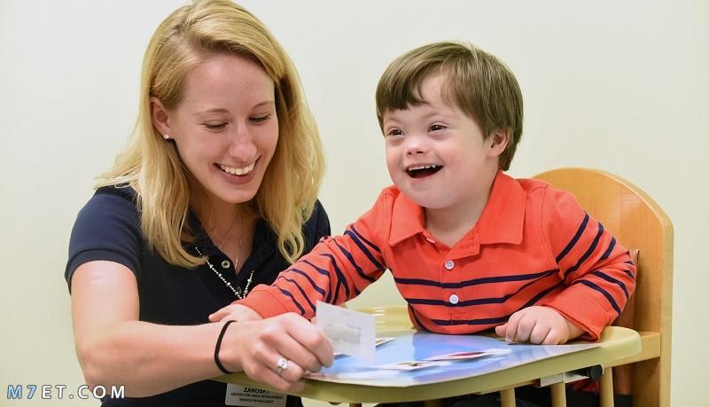 متلازمة داون عند الأطفال