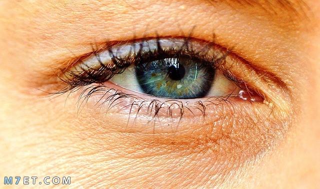 نصائح للوقاية من تجاعيد تحت العين