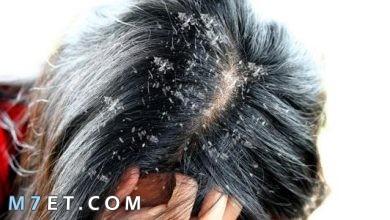 Photo of علاج قشرة الشعر الدهني بالوصفات المنزلية