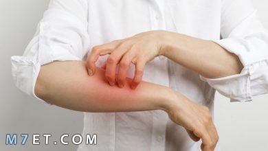Photo of امراض فطرية تصيب الانسان| 11 طريقة للقضاء على الفطريات