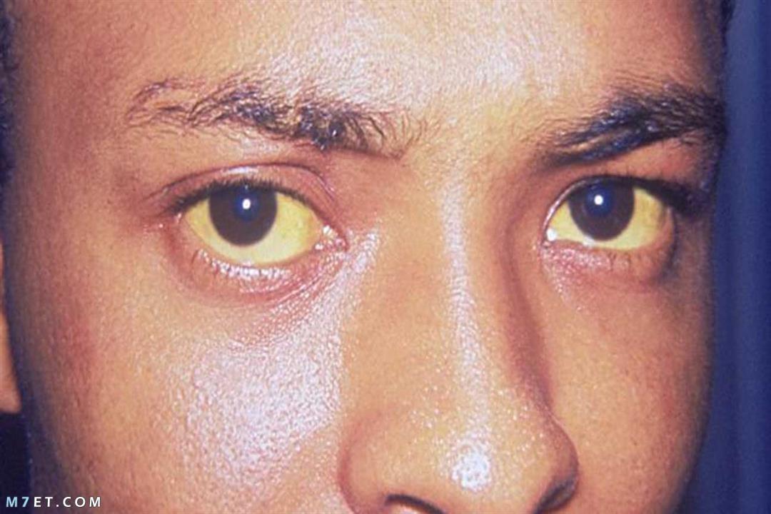 اسباب اصفرار الوجه
